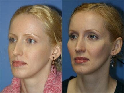 Cheek Plastic Surgery Before And After 1