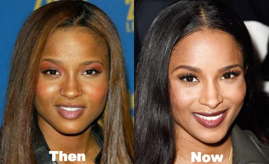 Ciara Before And After Plastic Surgery 1