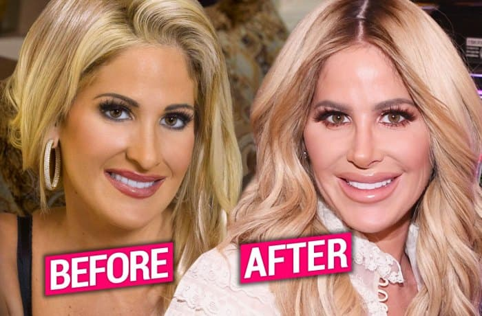 Heidi Before And After Plastic Surgery 1