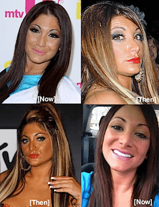 Deena Plastic Surgery Before And After 1