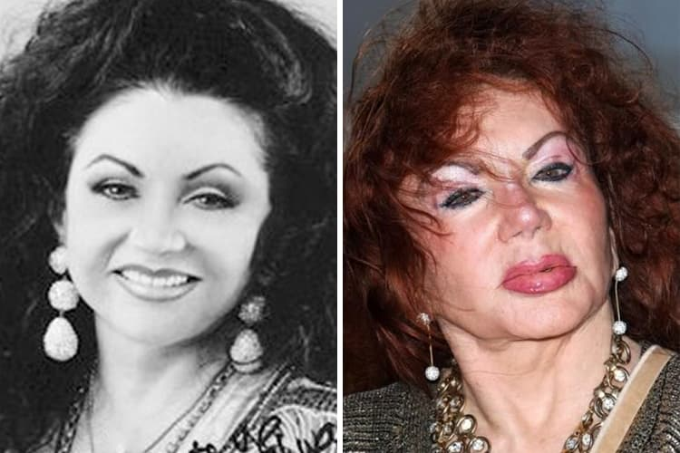 Jackie Stallone Before Plastic Surgery 1