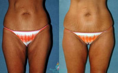 Thigh Plastic Surgery Before And After 1