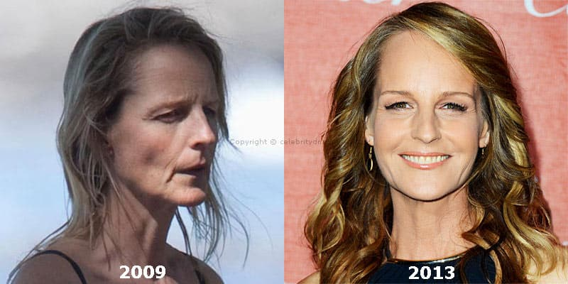 Detox Before And After Plastic Surgery 1