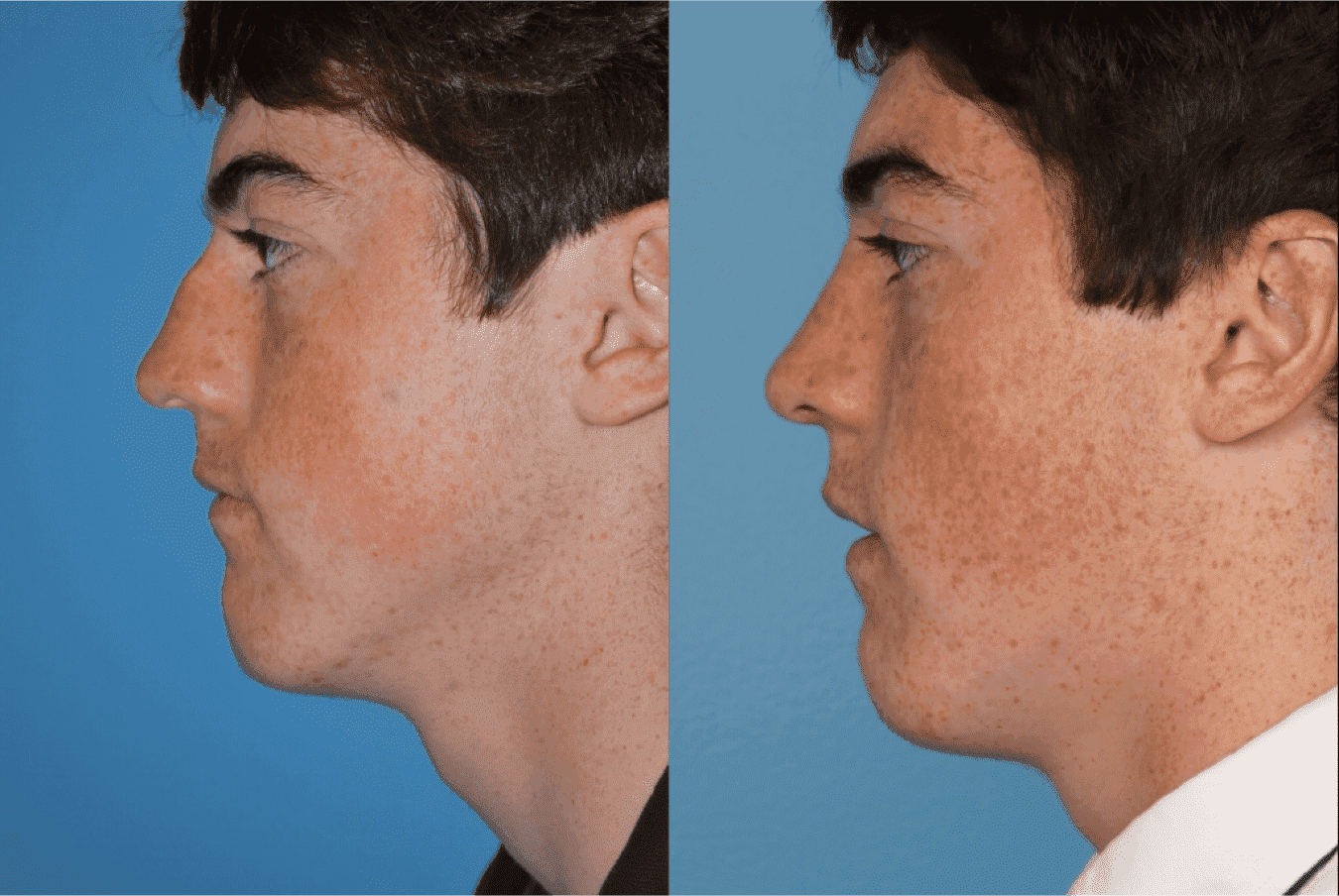 Plastic Surgery Male Before And After 1