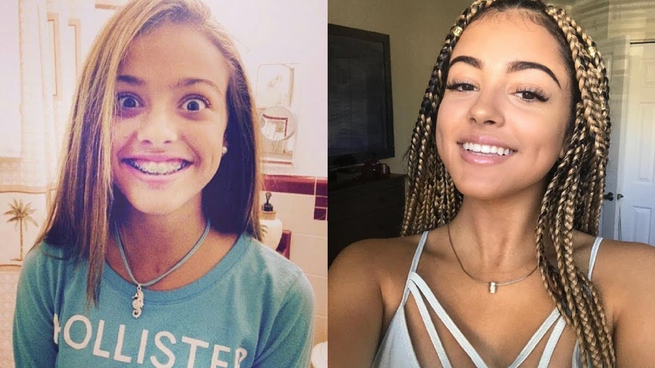 Babes Before And After Plastic Surgery 1