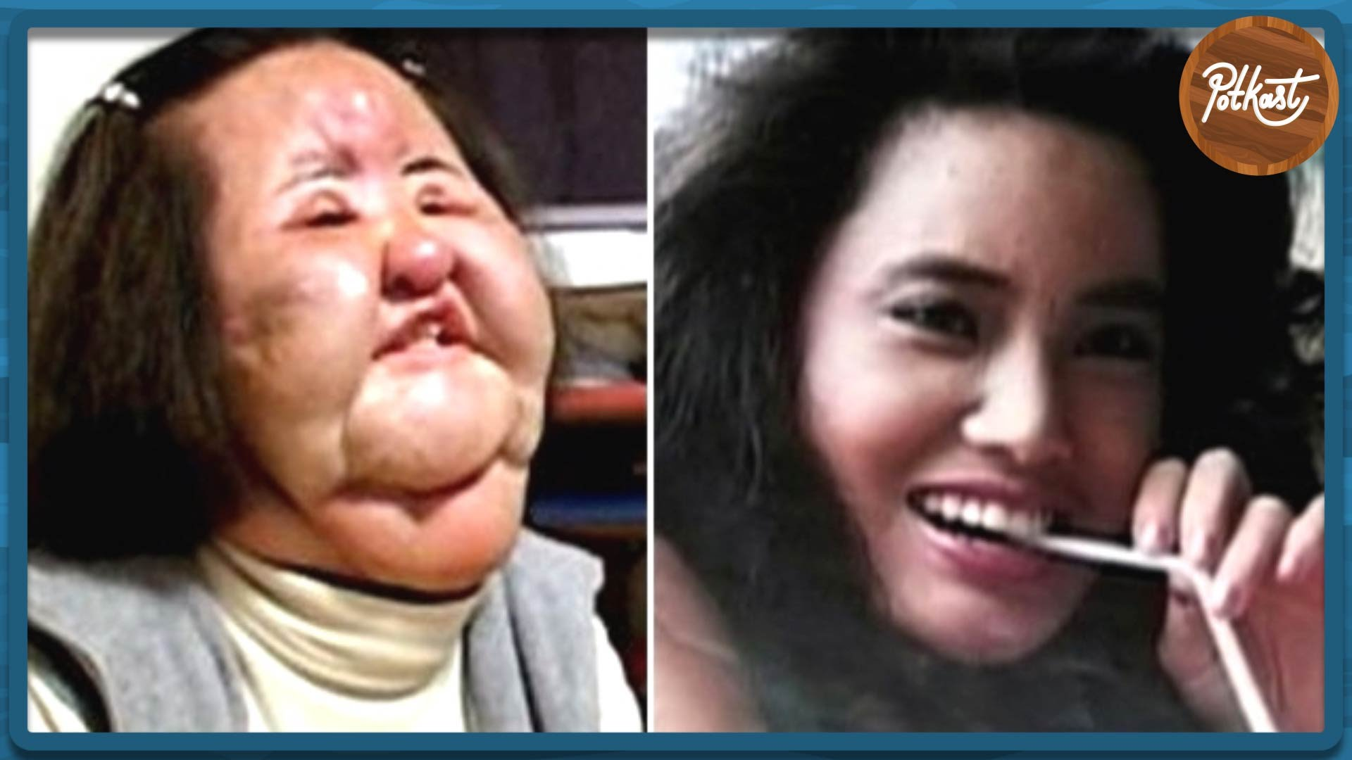 Before & After Plastic Surgery Fail 1