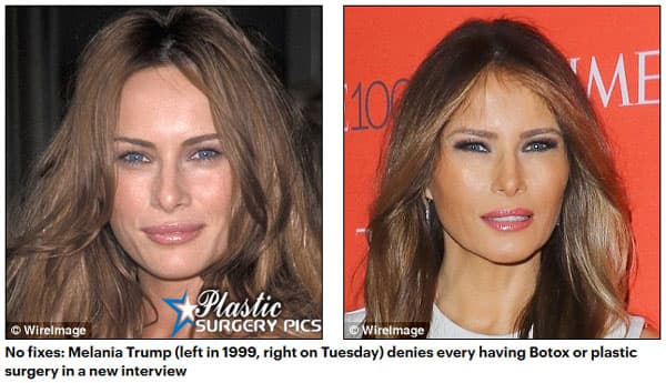 Before & After Plastic Surgery Trump 1