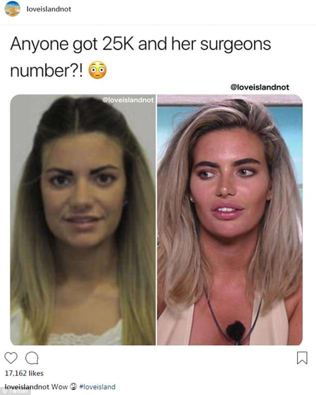 Before And After Stand Plastic Surgery 1