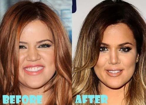 Khole Before And After Plastic Surgery 1