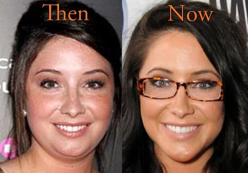 Palin Plastic Surgery Before And After 1