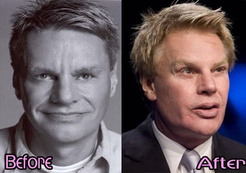 Abercrombie Ceo Before Plastic Surgery 1