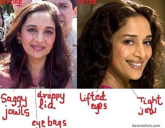 Bollywood Before After Plastic Surgery 1