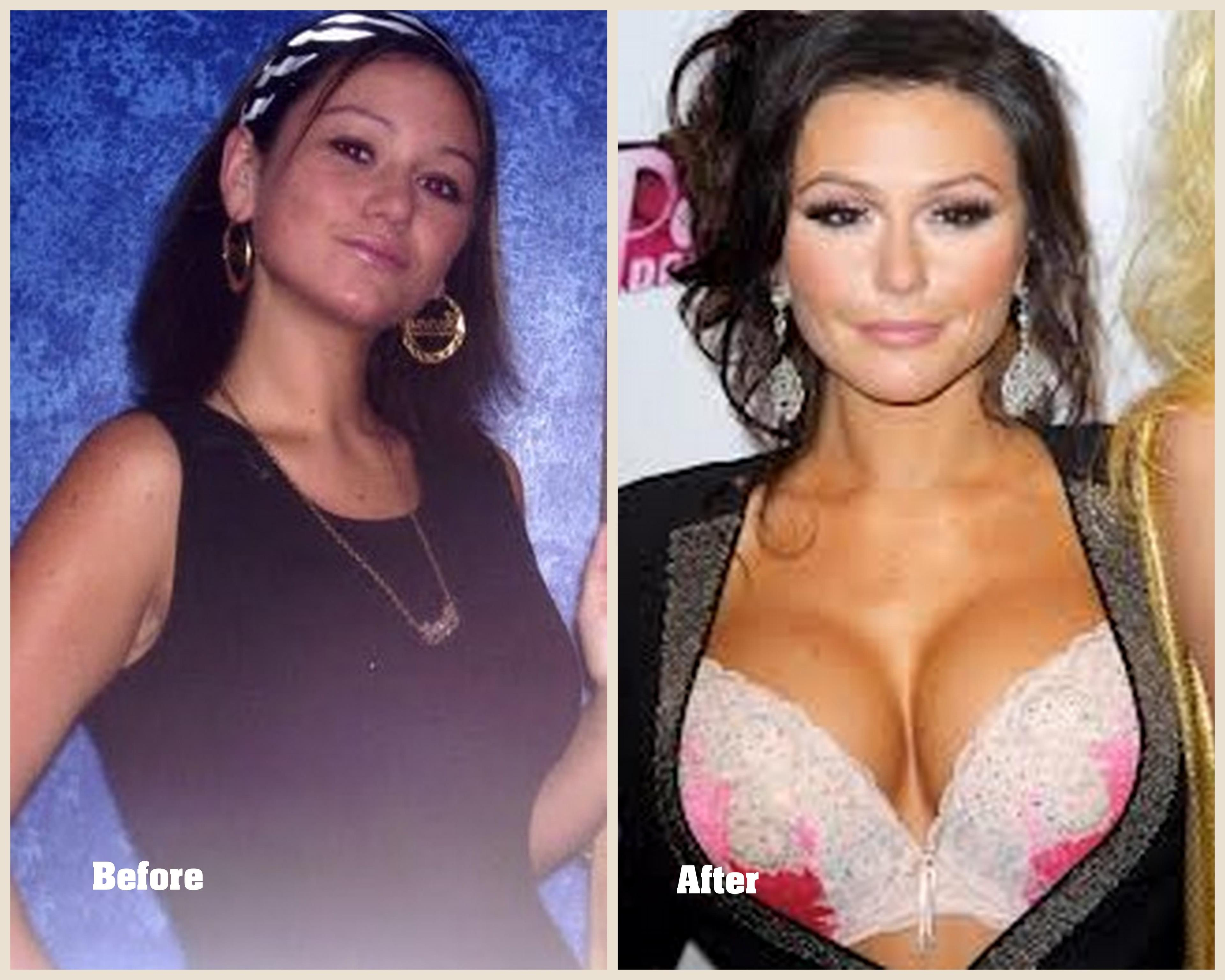 Jwow Plastic Surgery Before And After 1