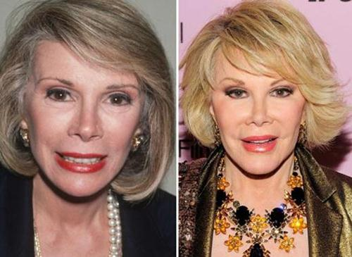 Joan Rivers Before All Plastic Surgery 1
