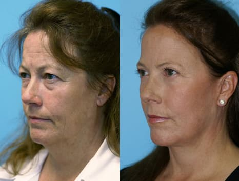Jowls Plastic Surgery Before And After 1