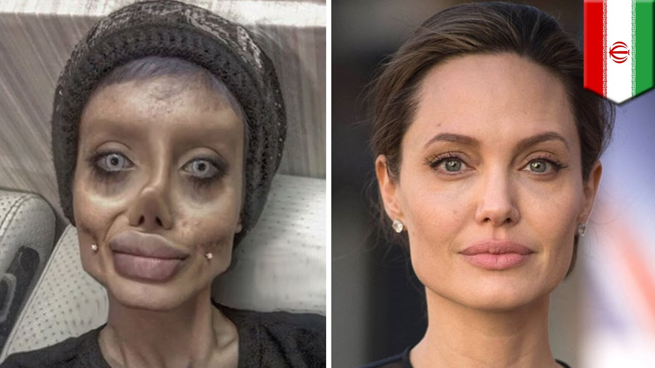 Asian Plastic Surgery Before And After 15 photo - 1