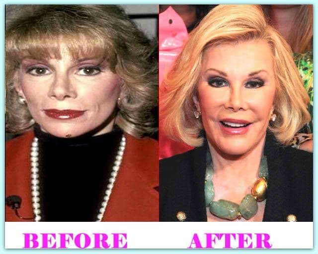 Piedmont Plastic Surgery Before And After photo - 1