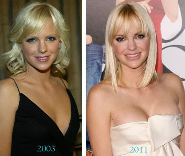 Anna Faris Before After Plastic Surgery 1