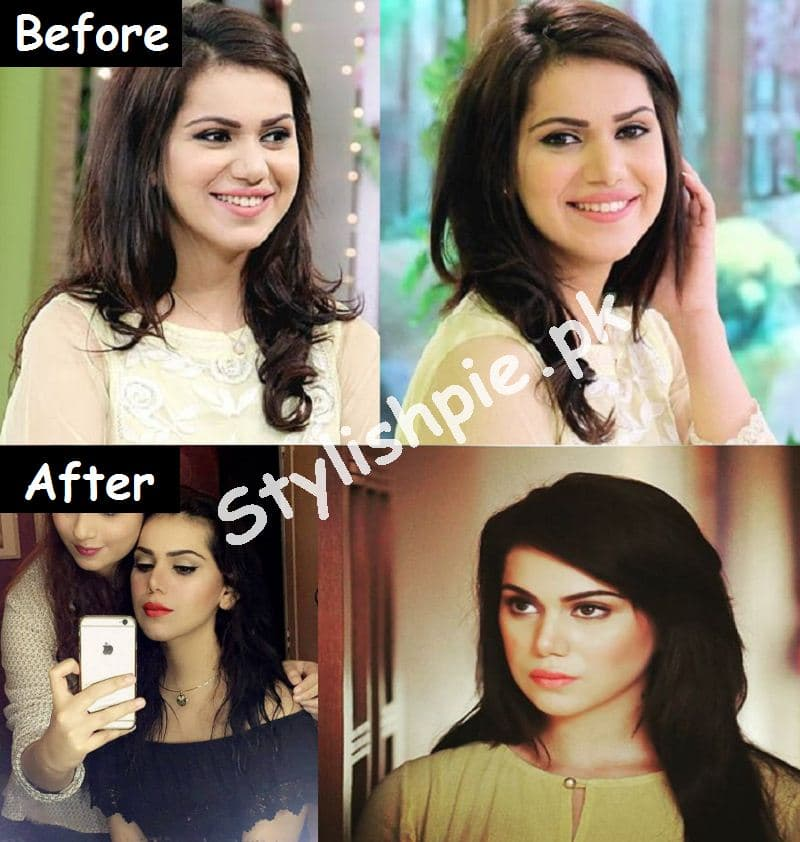 Famous Before And After Plastic Surgery 1