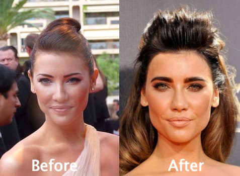 Steffy Forrester Before Plastic Surgery 1