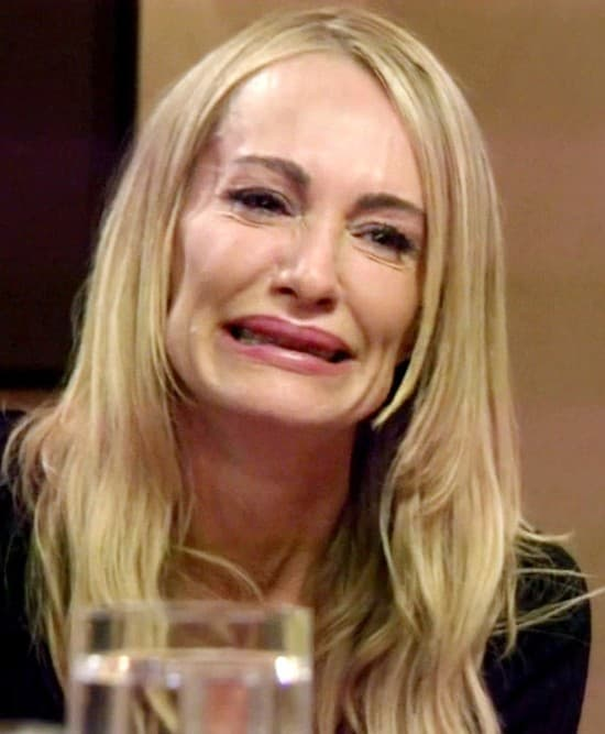 Taylor Armstrong Before Plastic Surgery 1