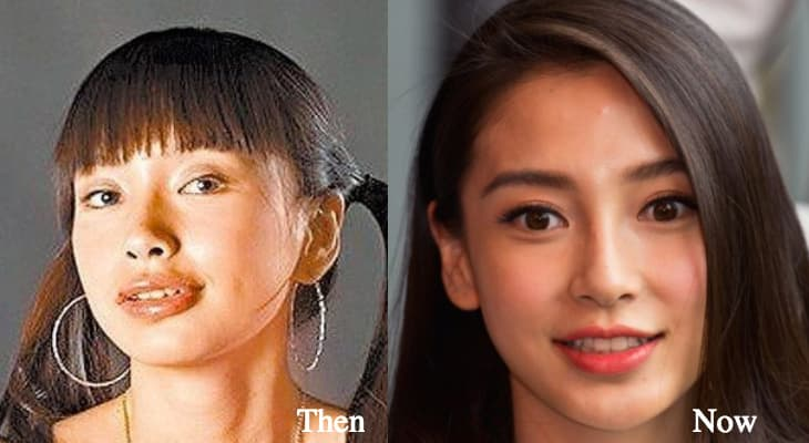 Angelababy Before After Plastic Surgery 1