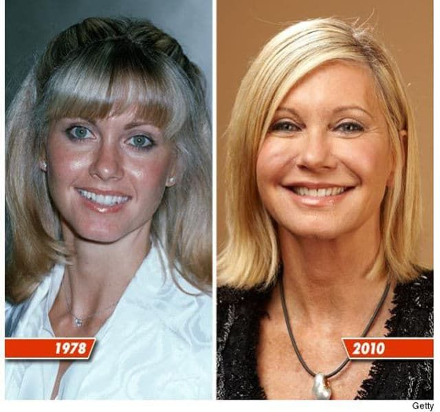Before And After Plastic Surgery Celebs 1