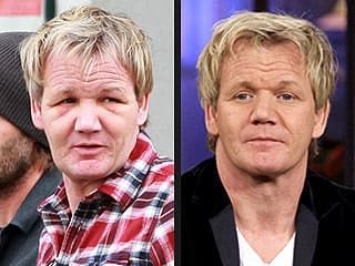 Bobby Flay Before After Plastic Surgery 1