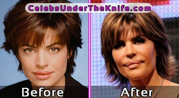Lisa Rinna Plastic Surgery Before After 1