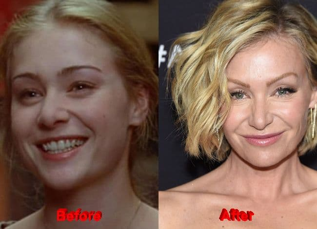 Portia Before And After Plastic Surgery 1
