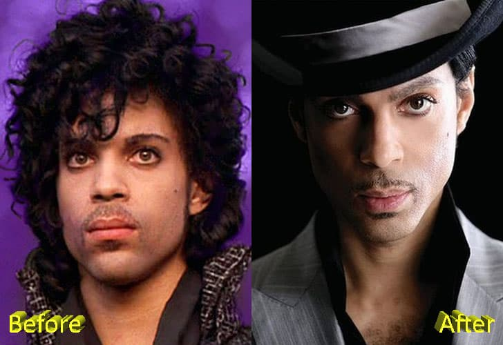 Prince Before And After Plastic Surgery 1