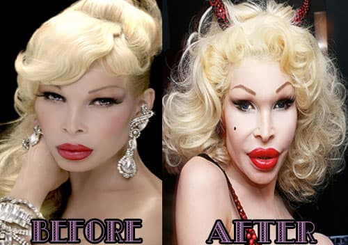 Before After Plastic Surgery Face Celeb 1
