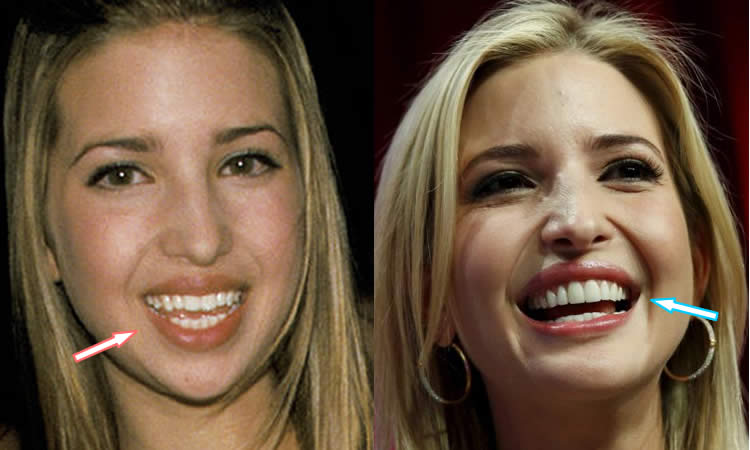 Before And After Ivanka Plastic Surgery 1