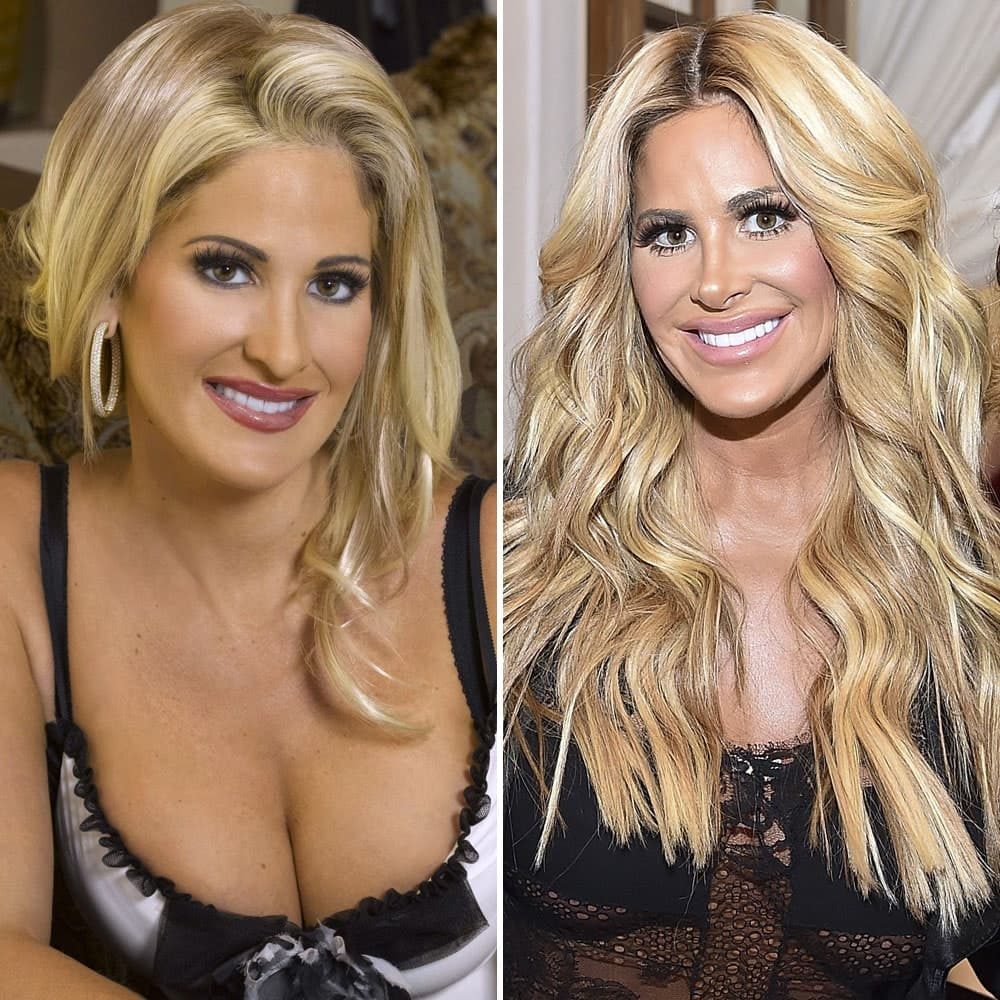 Before And After Plastic Surgery Heidi 1