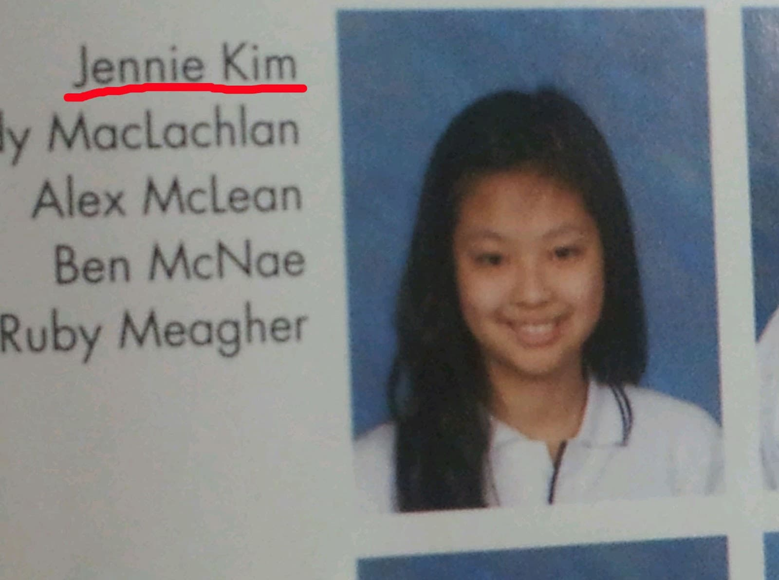 Jennie Kim Plastic Surgery Before After 1