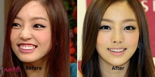 Lamuqe Before And After Plastic Surgery 1
