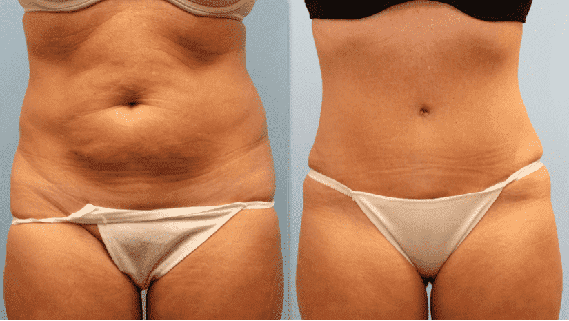 Plastic Surgery Before And After Tummy 1