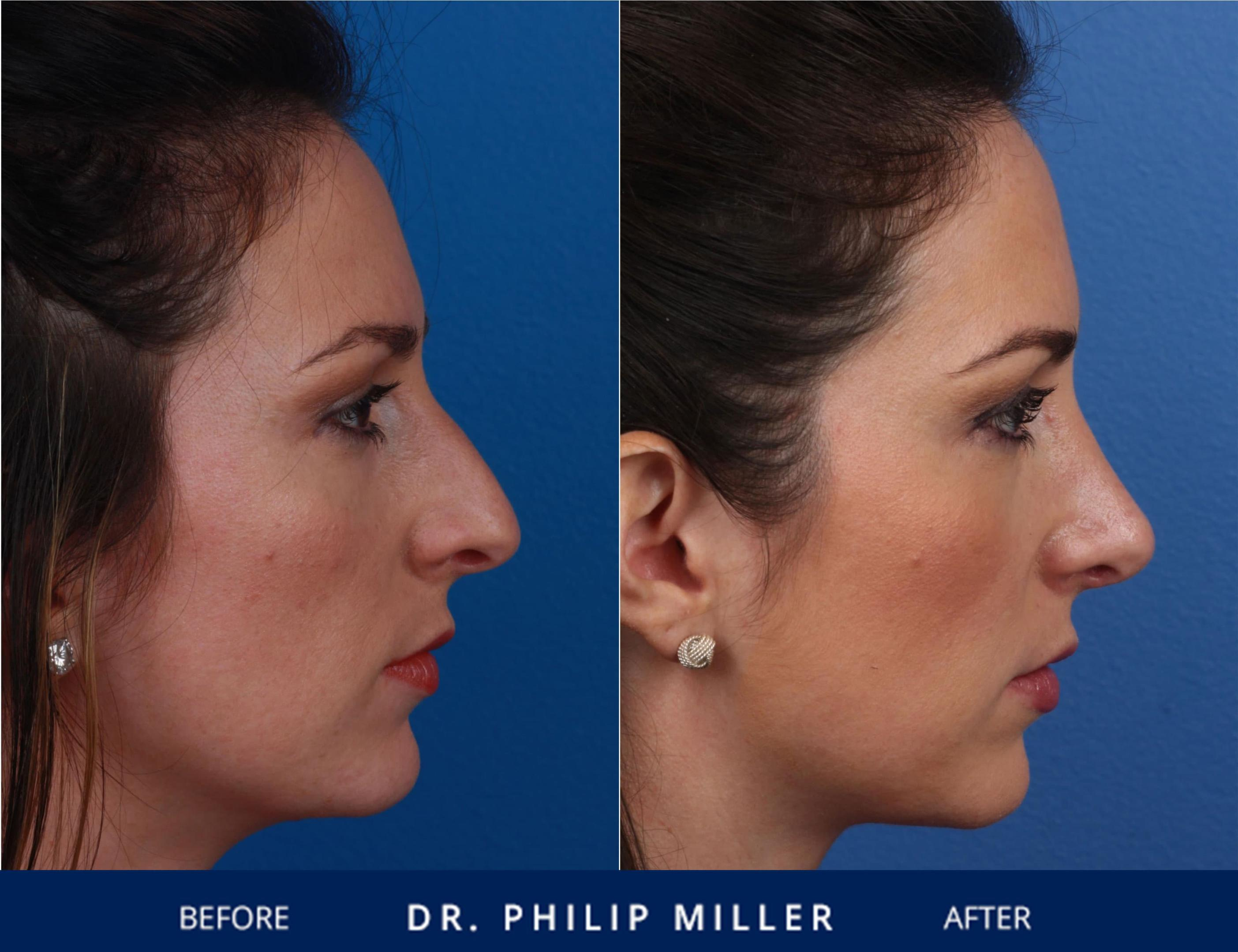 Plastic Surgery Before After Side View 1