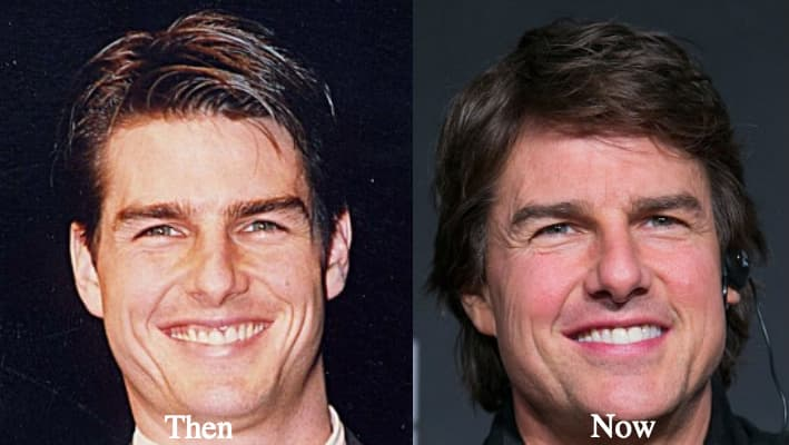 Tom Cruise Before After Plastic Surgery 1