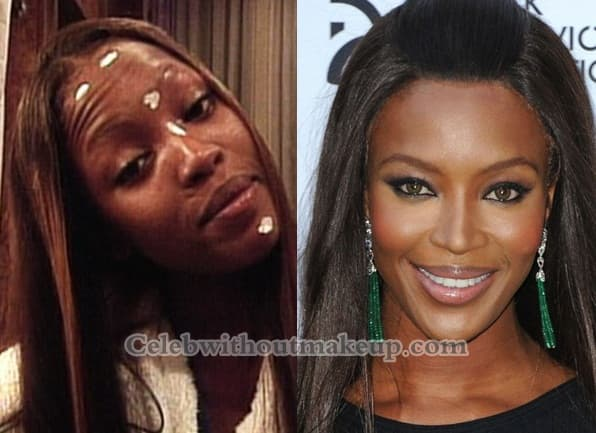 Ugly Celebrities Before Plastic Surgery 1