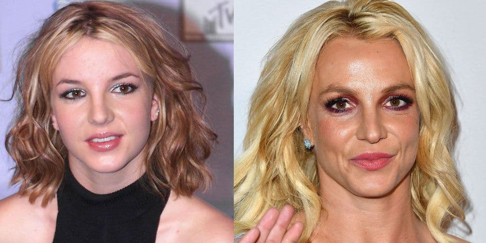 Beauty Before And After Plastic Surgery 1