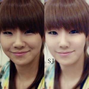 Cl Before After Plastic Surgery 1