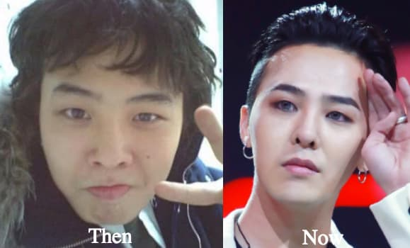 Cl Looked Better Before Plastic Surgery 1