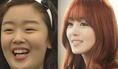 Han Sunhwa Before After Plastic Surgery 1