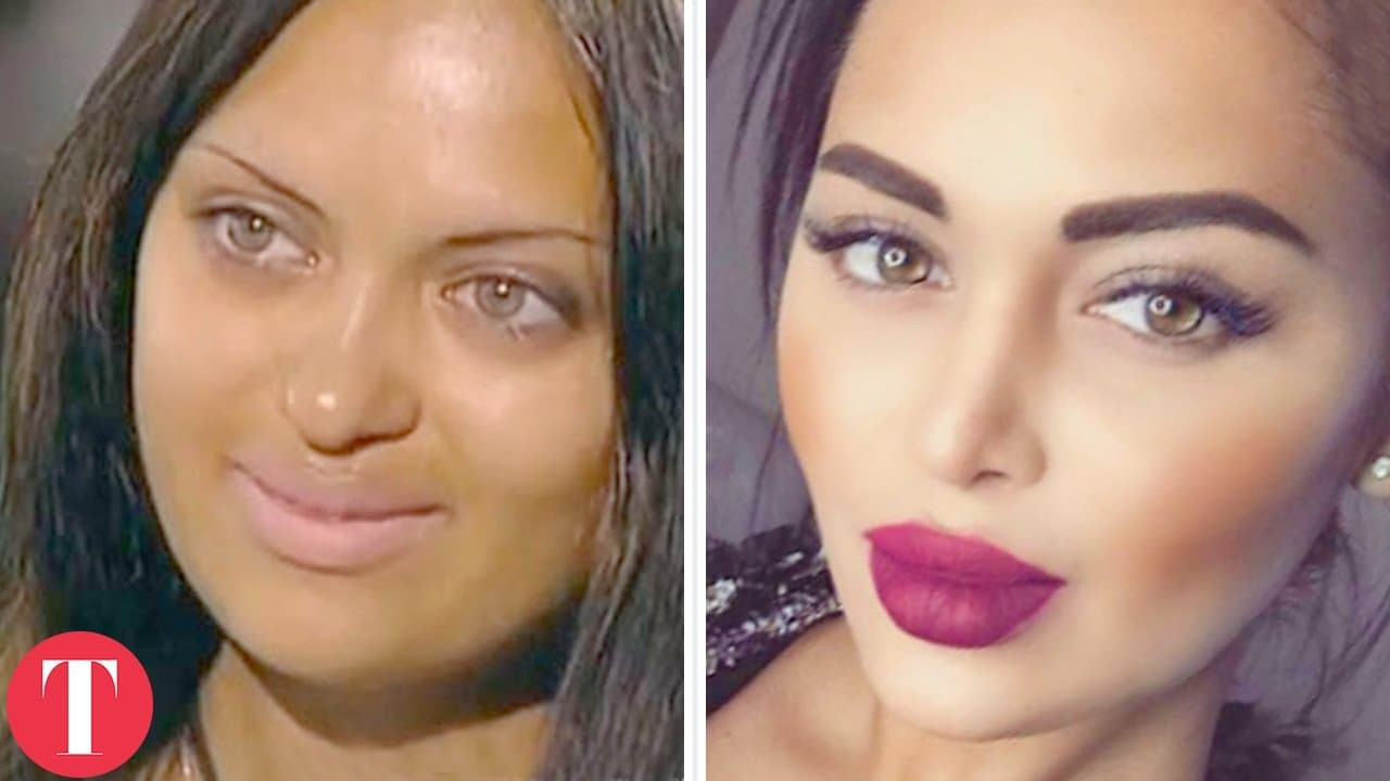 Plastic Surgery Before And After Barbie 1
