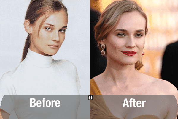 Plastic Surgery Before And After Female 1