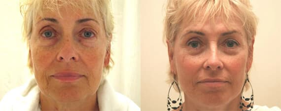 depression after plastic surgery normal 1