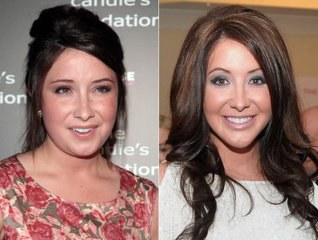 Bristol Palin Before After Plastic Surgery photo - 1