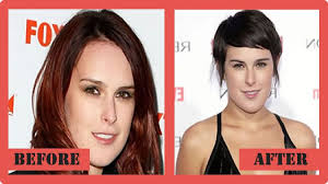 Plastic Surgery Before And After Chicago photo - 1