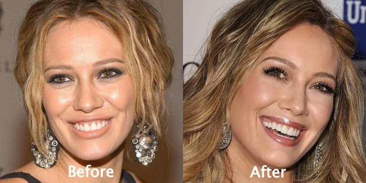 Plastic Surgery On Breast Before And After photo - 1